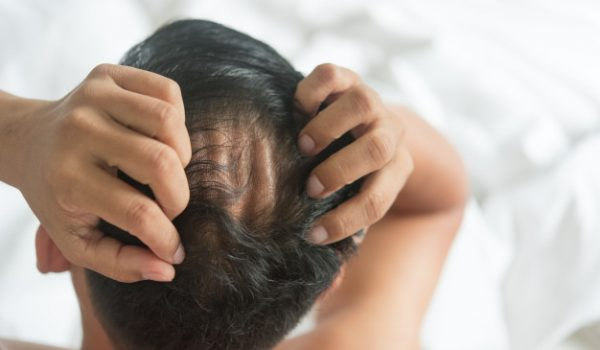asian-man-are-worried-with-hair-loss-problem-bed-home_40919-1006